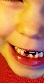 Mund eines Kindes, vorne unten klafft eine Zahnlücke