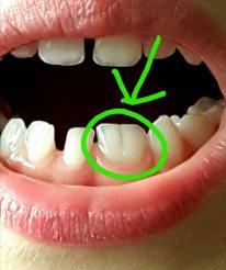 Der Mund eines Kindes, vorne unten zwei zusammengewachsene Zähne